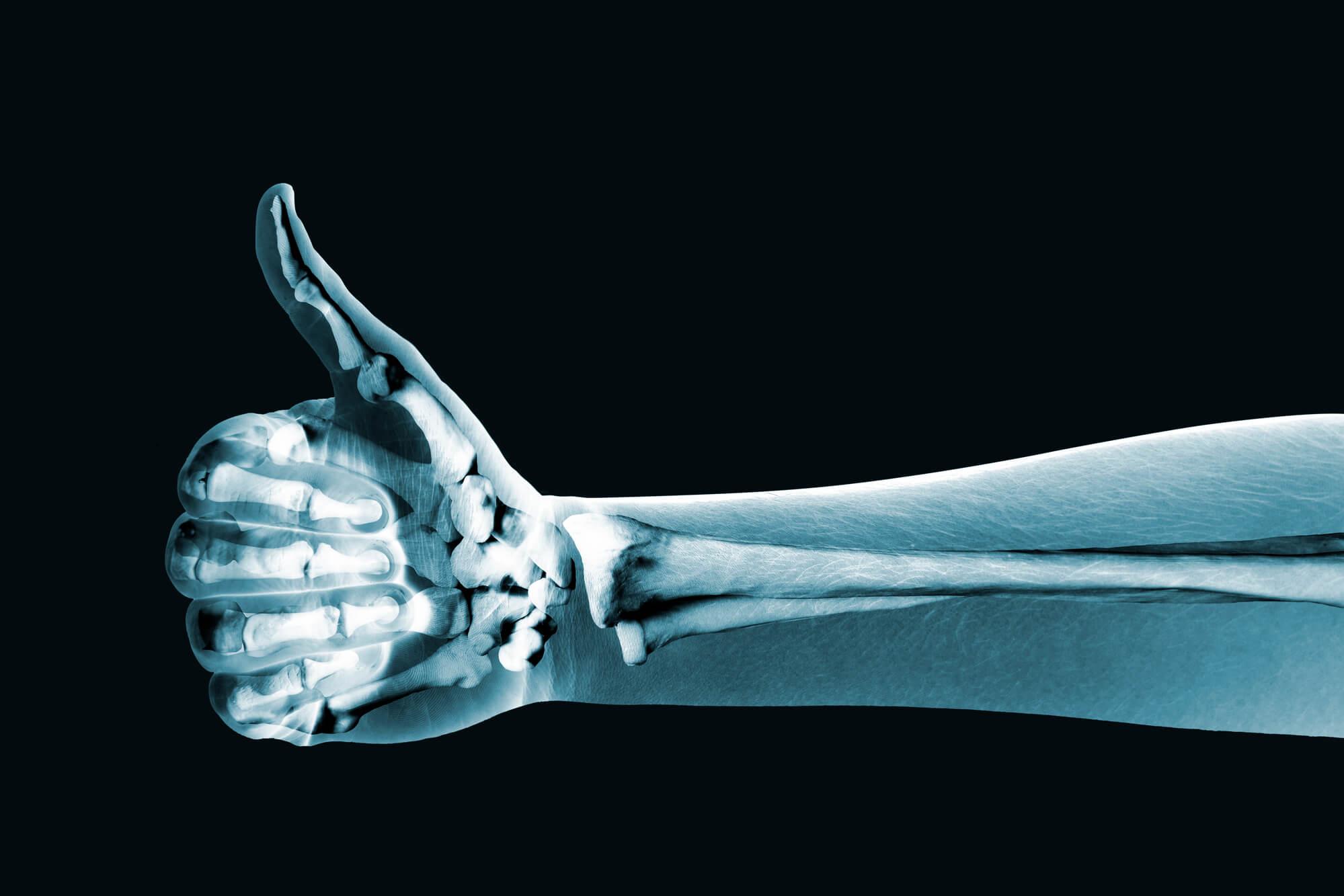 Les véganes sont-ils vraiment à risque pour des os fragiles?
